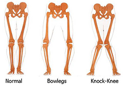 knee braces alignment