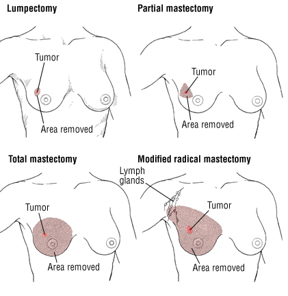 Why It Is Important To Understand Mastectomy and How It Can Help To Prevent Cancer